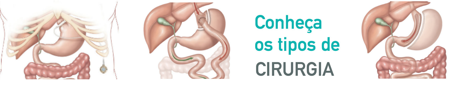 http://cirurgiadeobesidade.med.br/wp-content/uploads/2015/11/Banner-02-aprovado.jpg